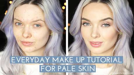A blogueira mostrou o rosto com acne há três meses