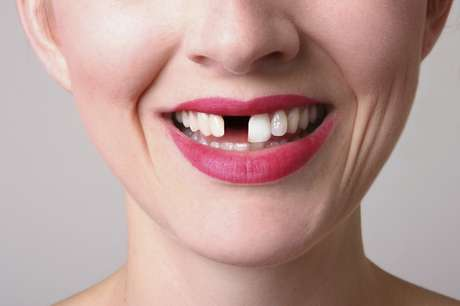 Problemas com a perda de um dente