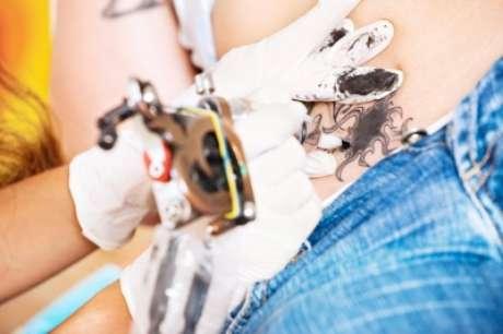 Alegar que a tatuagem 'não ficou do jeito que eu queria' nem sempre garante a indenização ou reparação