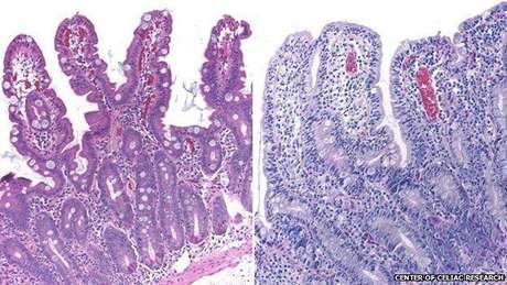 Vilosidades intestinais com aparência normal (esq.) e com as características de um celíaco