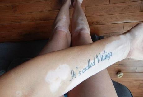 """Tiffany Posteraro tatuou o braço com a frase """"É chamado de vitiligo"""" para evitar preconceito"""