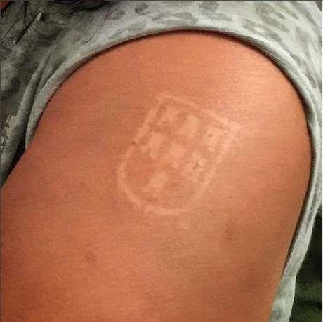 "Homem exibe ""tatuagem"" adquirida por meio da Sunburn Art"