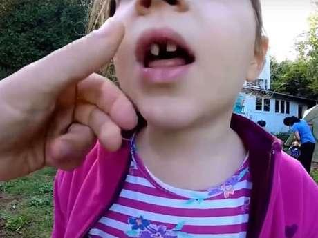 No es necesario reemplazar la pieza si se trata de un diente de leche