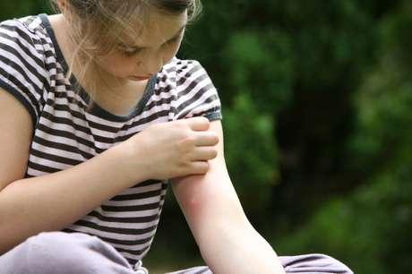 Queratose pilar é mais comum na infância e na adolescência.
