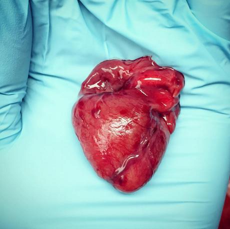 Nicole mostra o coração de um feto; órgão cabia na palma de sua mão