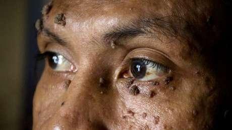 Dedé Koswana, da Indonésia, sofre do mesmo problema, e teve o caso divulgado em 2007