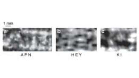 Letras foram identificadas previamente nos papiros de Herculano, na Itália