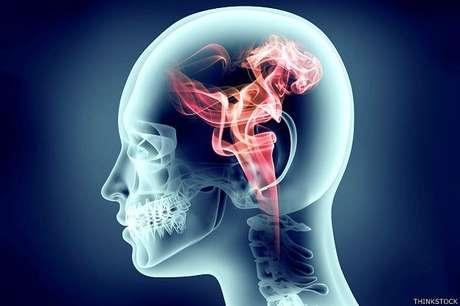 Empresa americana tentará reanimar cérebro de pacientes mortos