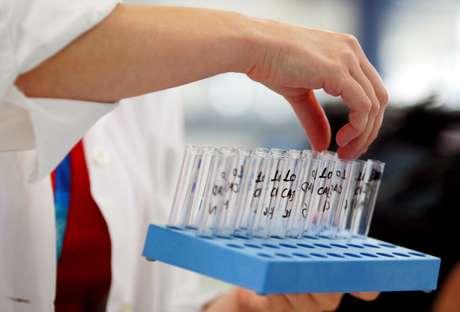 Ainda é necessário fazer uma segunda análise para esses casos, da chamada amostra B, para a confirmação do doping.