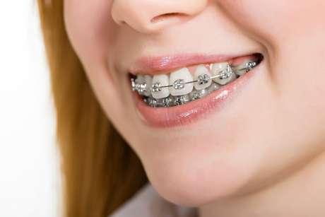 Essa combinação de desorganização do ligamento e seu alargamento causam a mobilidade dentária transitória, ou seja, sim os dentes ficam moles por um período!