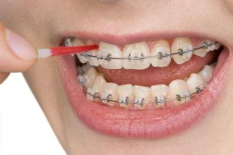 Quando o paciente fica muito tempo com o aparelho, é normal que ele se desmotive em relação a higiene bucal, facilitando o surgimento de cáries e problemas na gengiva