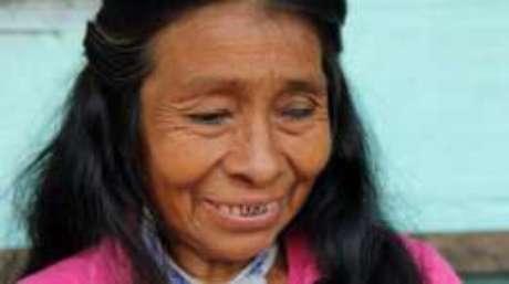 Irene Guasiruma lsofreu a mutilação quando era um bebê, mas disse que não repete a prática.