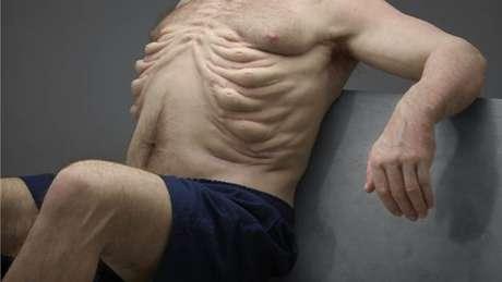 Costelas mais fortes dão a Graham mais proteção para os órgãos