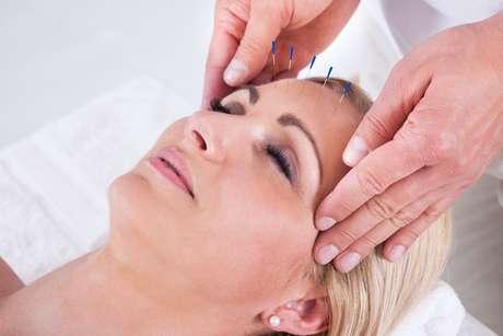 A acupuntura pode ser utilizada em todas as especialidades odontológicas como terapia complementar