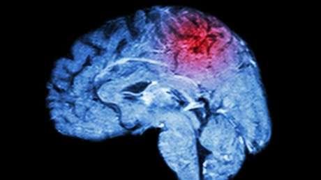 Os sintomas do miniderrame são sinais de alerta de um derrame mais grave que pode acontecer em breve