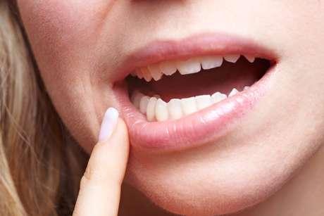 """""""Estudos feitos com pessoas que extraíram e não extraíram esses dentes mostram que certos apinhamentos ocorreriam do mesmo jeito"""", diz Érick Santos Duarte, cirurgião-dentista bucomaxilofacial."""