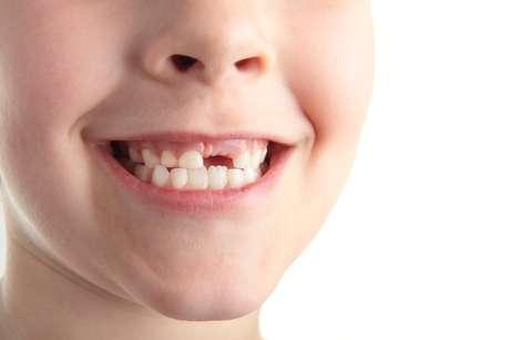 O permanente também demora para dar as caras quando o dente de leite cai muito cedo por causa de uma cárie ou um trauma