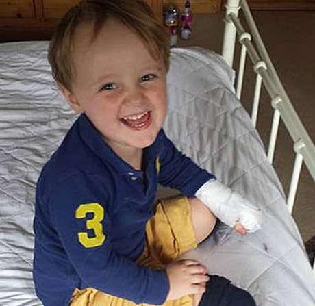Reuben perdeu as duas pernas abaixo do joelho e sete dedos da mão após falha do hospital