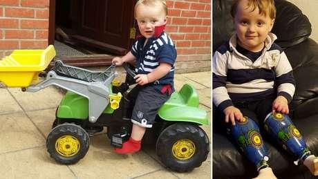 Reuben, antes e depois de pernas prostéticas