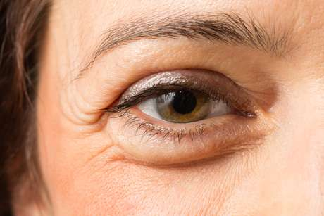 As pálpebras são umas das primeiras áreas do rosto a apresentar sinais de envelhecimento