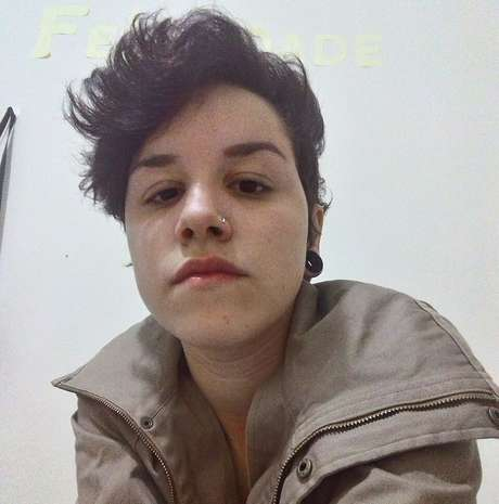 Estudante perdeu a visão durante o protesto contra o impeachment da presidente Dilma, no dia 31 de agosto em São Paulo