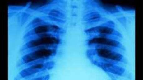 Desenvolvimento incompleto das clavículas muitas vezes é a característica mais marcante da doença