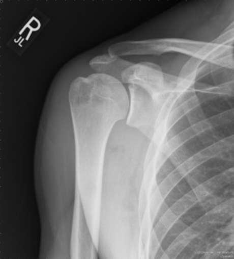 Artrose do ombro é mais comum do que se imagina