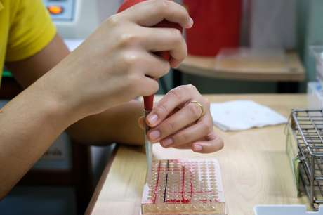 Uma epidemia de sífilis vem sendo reconhecida no Brasil nos últimos anos.