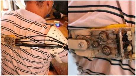 Em prótese de Ari, cada fio de ferro se conecta com elásticos que movimentam cada dedo, numa ponta da prótese. Na outra, os ferros ficam ligados à estrutura que se prende ao ombro oposto. Quando ele movimenta o ombro, puxa os ferros e os elásticos e, então, movimenta os dedos.