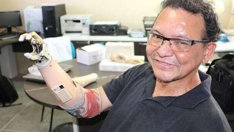 Ari Ribeiro com prótese de R$ 30 mil que ganhou de empresa; ele continua usando suas invenções, pois prótese tem apenas três dedos e não possui mobilidade no punho, algo que sua invenção de R$ 400 oferece