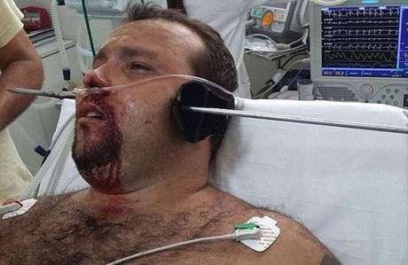Homem deu entrada em hospital com barra de metal atravessada na cabeça.