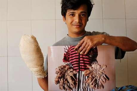 Abul Bajandar, muestra una fotografía de cómo estaban sus manos antes de someterse a las operaciones