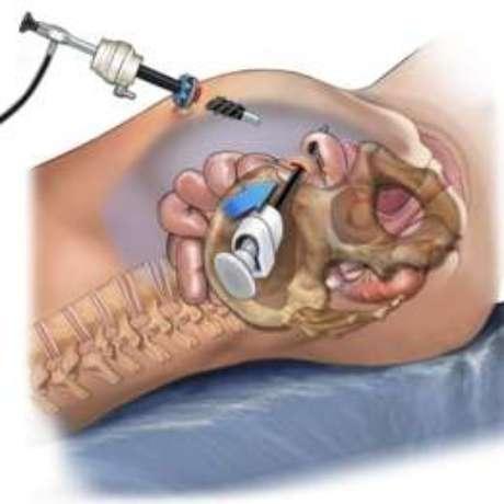 A laparoscopia é uma cirurgia pouco invasiva, em que são feitos pequenos cortes na parede abdominal para a introdução de câmeras, pinças e pequenos aparelhos para manipular os órgãos e vísceras.