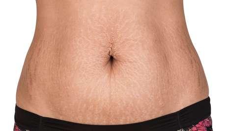 Estrias não aparecem apenas na pele das mulheres