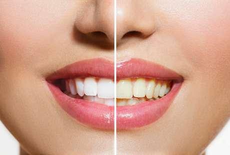 Apesar de ser um problema apenas estético, o escurecimento dos dentes é uma das maiores reclamações nos consultórios odontológicos