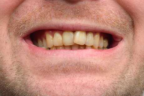 Os dentes caninos são sempre mais escuros que os restantes pois possuem maior quantidade de dentina.