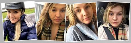 Celine diz que suas fotos revelam deterioração de sua saúde mental; ela sofre de depressão e ansiedade
