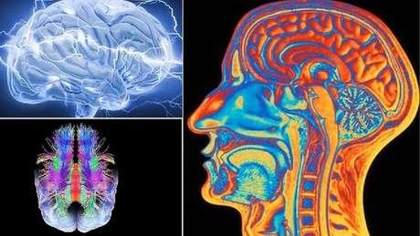 Há mais de 40 tipos de epilepsia, segundo os especialistas