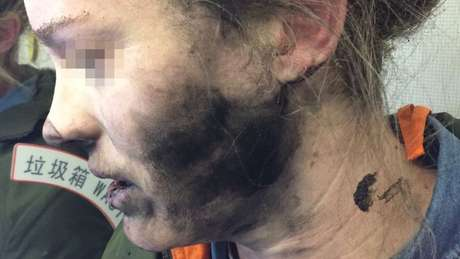 Passageira ficou com uma mancha negra no rosto