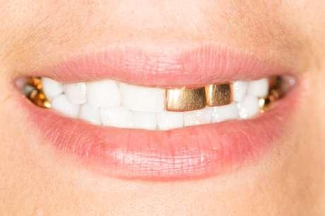 Antigamente, quando uma pessoa com restaurações feitas em ouro morria, a família pedia para que os dentes dourados fossem retirados.