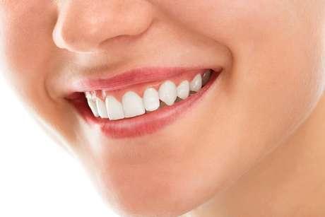 Apesar de não parecer, a gengivoplastia é um procedimento de valor bastante acessível. A maioria dos profissionais cobra por dente, então depende de quantas reparações a pessoa deseja fazer.