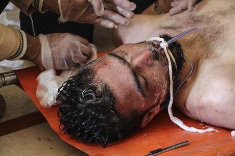 Un hombre recibe tratamiento médico tras un supuesto ataque químico contra la localidad de Jan Shijún