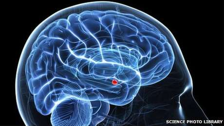 Indivíduos com autismo possuem menos atividade na amígdala (em vermelho), que tem um papel fundamental no processamento de emoções