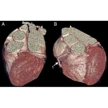 Exames possibilitam prevenir problemas cardíacos
