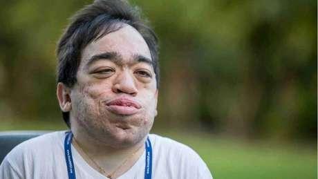 Médicos diziam que Luis Eduardo Próspero, de 26 anos, não chegaria à adolescência