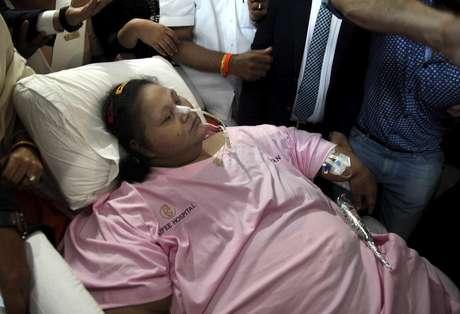 A mulher egípcia sai da Índia com 300 quilos a menos após cirurgia