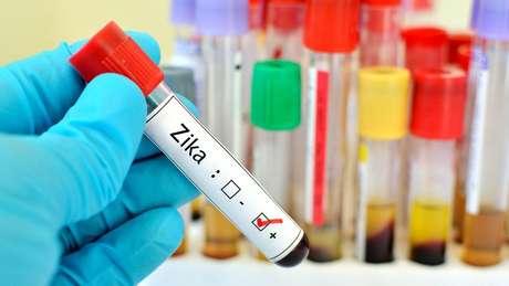 Perigoso para bebês, vírus Zika pode ajudar adultos a combater câncer, dizem cientistas