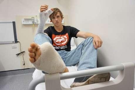 Zac Mitchell's teve o dedão do pé enxertado em sua mão direita