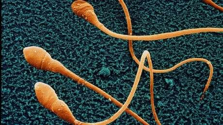 Espermatozoides vistos no microscópio eletrônico