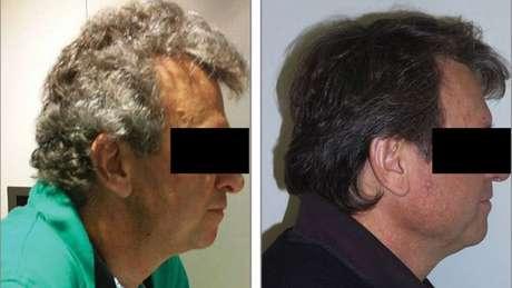 Dos 52 pacientes com câncer de pulmão, 14 tiveram mudanças na pigmentação do cabelo